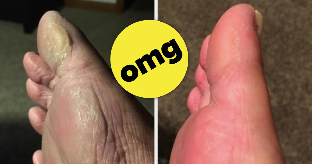 This Foot File's Before And After Photos Will Knock Your Socks Off