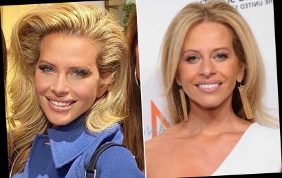 Dina Manzo blames two-year-old nose job, other tweaks for new look
