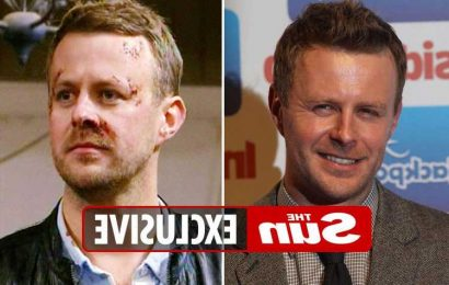 Emmerdale star Tom Lister asked to return as Carl King's ghost – and is now desperate to make a comeback